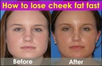 How to Lose Cheek Fat Fast